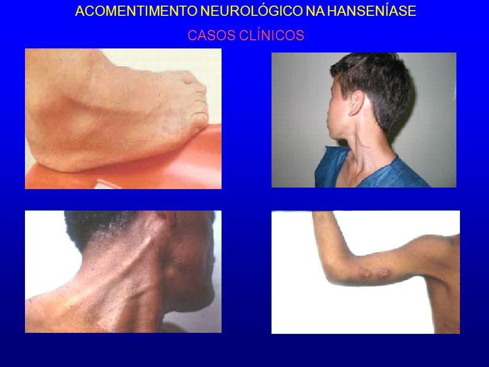 ACOMENTIMENTO NEUROLÓGICO NA HANSENÍASE