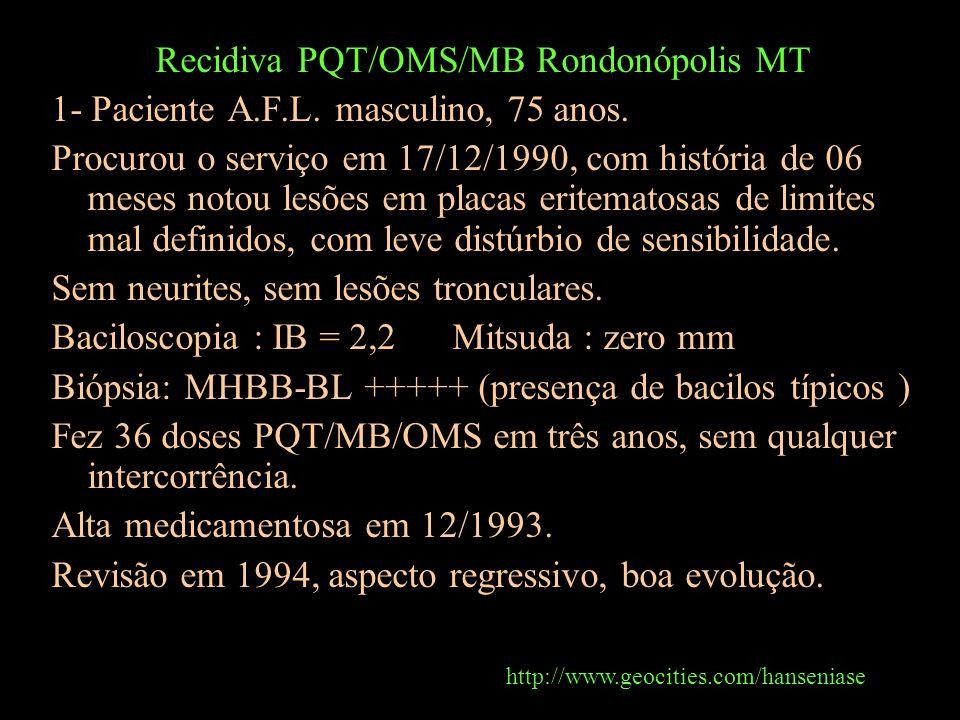 Recidiva PQT/OMS/MB Rondonópolis MT