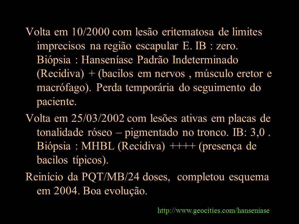 Reinício da PQT/MB/24 doses, completou esquema em 2004. Boa evolução.