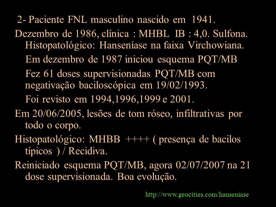 Em dezembro de 1987 iniciou esquema PQT/MB