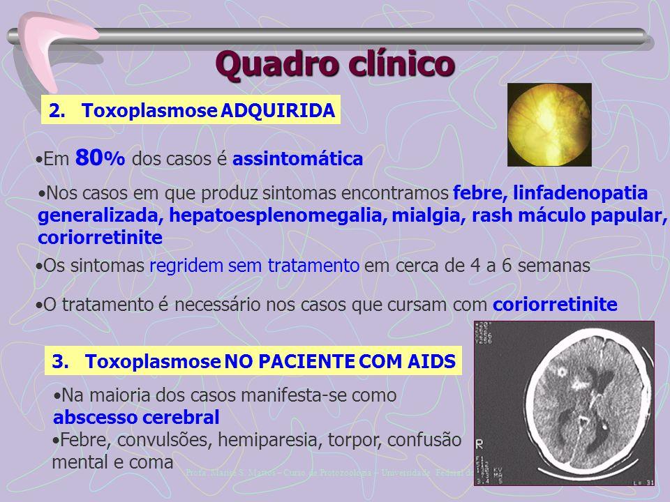 Quadro clínico Toxoplasmose ADQUIRIDA Em 80% dos casos é assintomática