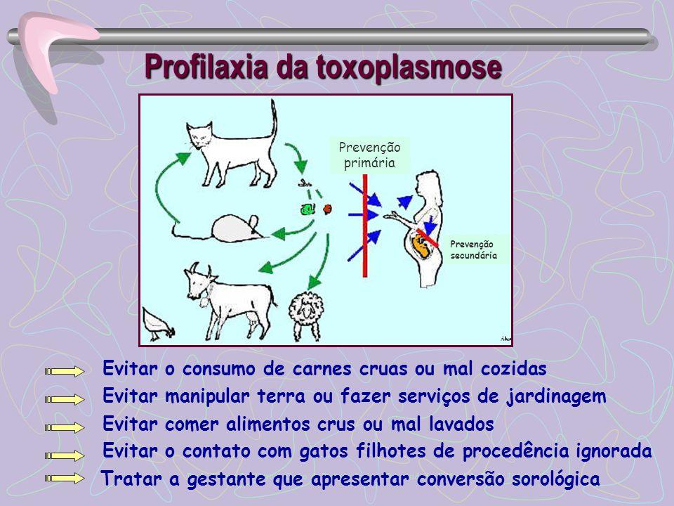 Profilaxia da toxoplasmose