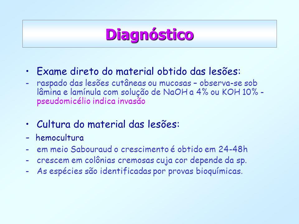 Diagnóstico Exame direto do material obtido das lesões: