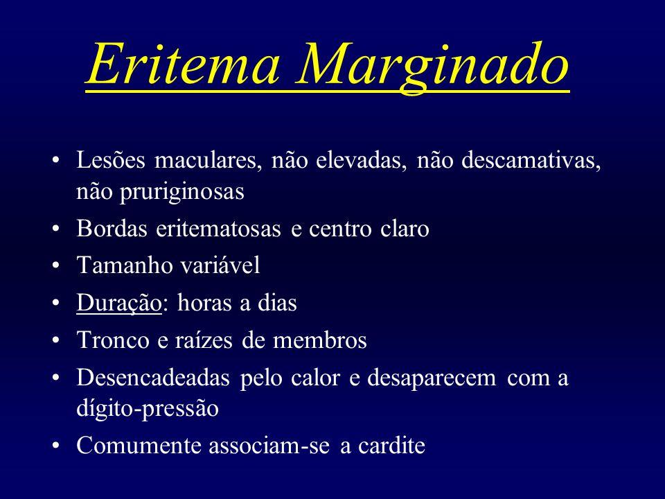 Eritema Marginado Lesões maculares, não elevadas, não descamativas, não pruriginosas. Bordas eritematosas e centro claro.