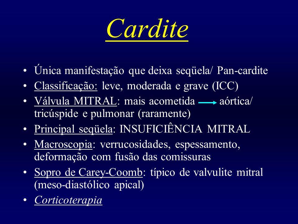 Cardite Única manifestação que deixa seqüela/ Pan-cardite