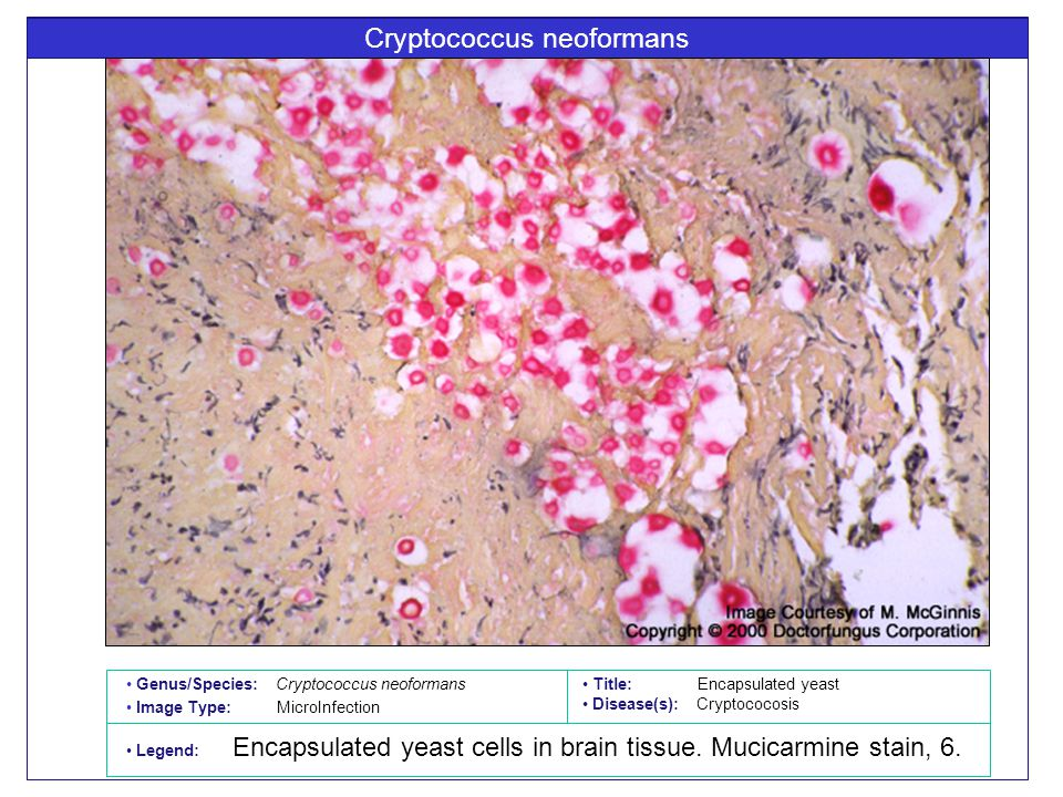 Cryptococcus neoformans