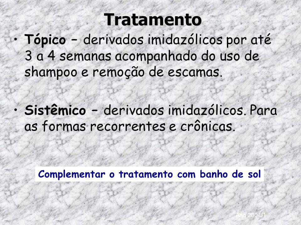 Tratamento Tópico – derivados imidazólicos por até 3 a 4 semanas acompanhado do uso de shampoo e remoção de escamas.