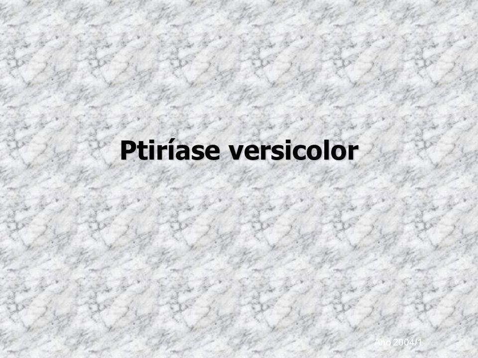 Ptiríase versicolor Ano 2004/1