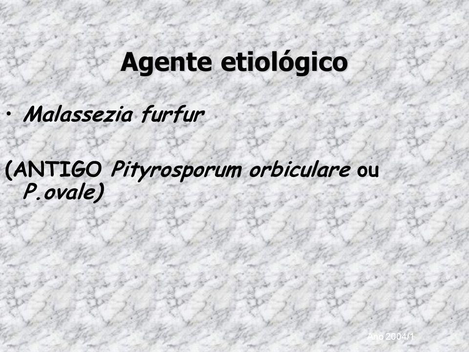 Agente etiológico Malassezia furfur