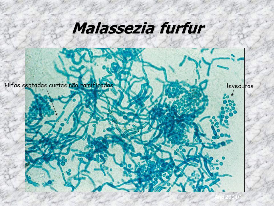 Malassezia furfur Hifas septadas curtas não ramificadas leveduras