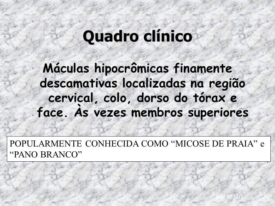 Quadro clínico Máculas hipocrômicas finamente descamativas localizadas na região cervical, colo, dorso do tórax e face. Às vezes membros superiores.