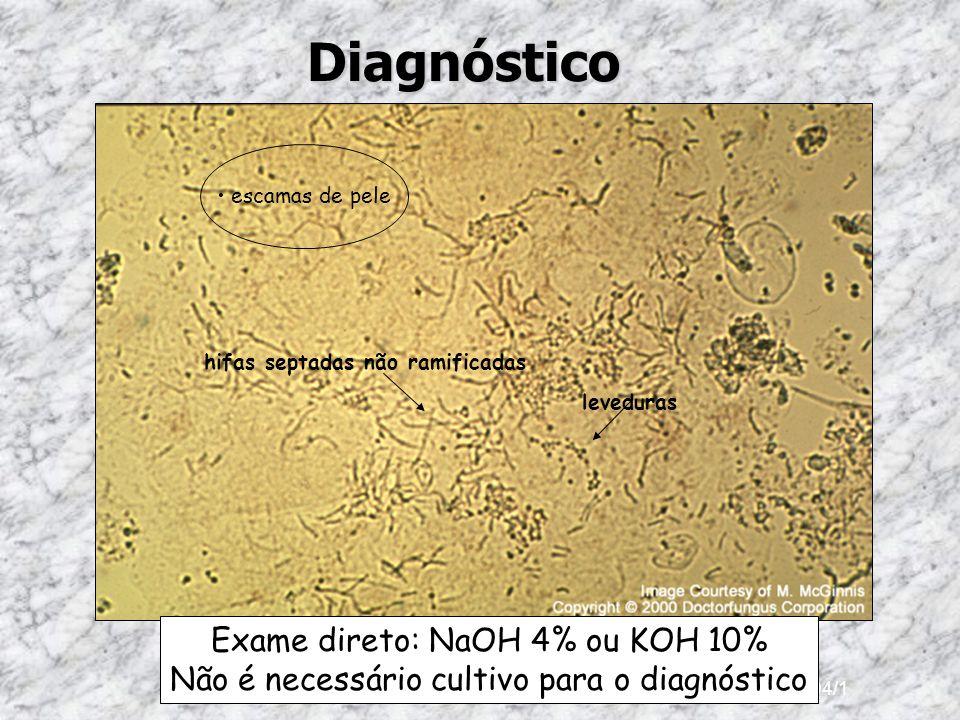Diagnóstico Exame direto: NaOH 4% ou KOH 10%