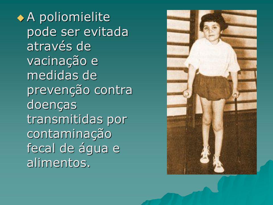 A poliomielite pode ser evitada através de vacinação e medidas de prevenção contra doenças transmitidas por contaminação fecal de água e alimentos.