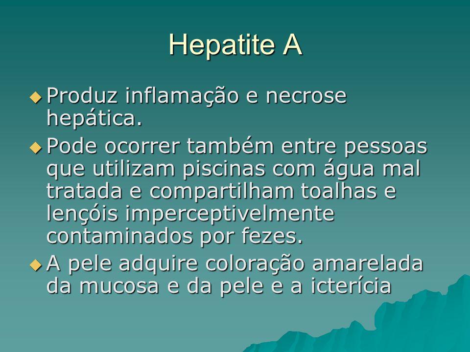 Hepatite A Produz inflamação e necrose hepática.