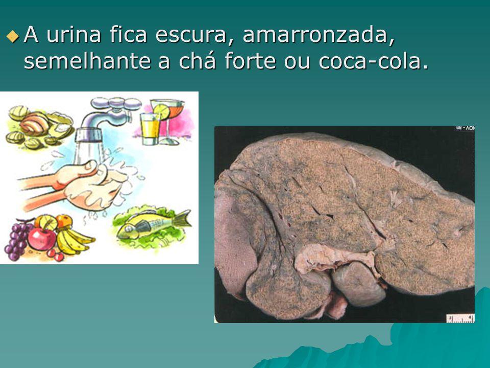 A urina fica escura, amarronzada, semelhante a chá forte ou coca-cola.