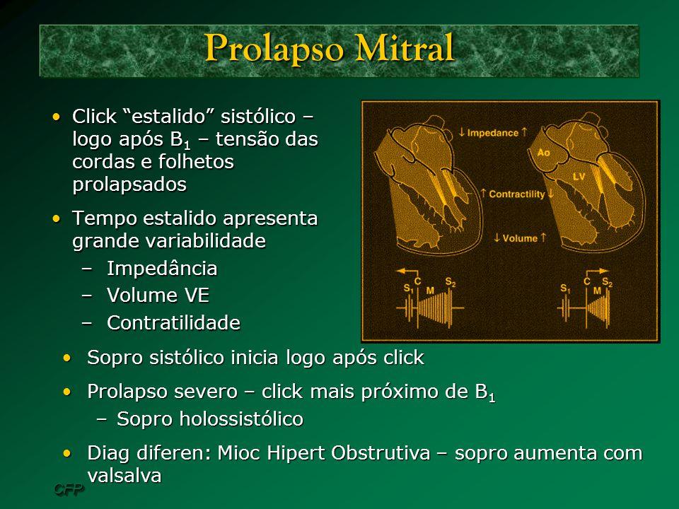 Prolapso Mitral Click estalido sistólico – logo após B1 – tensão das cordas e folhetos prolapsados.