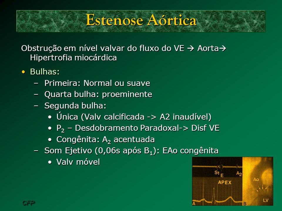 Estenose Aórtica Obstrução em nível valvar do fluxo do VE  Aorta Hipertrofia miocárdica. Bulhas: