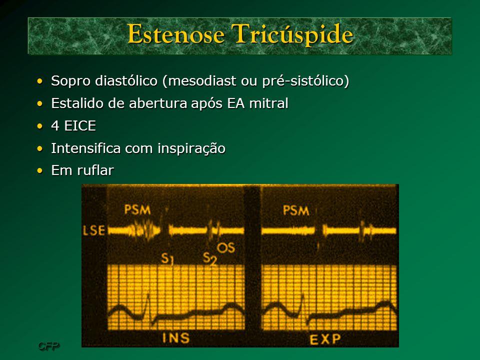 Estenose Tricúspide Sopro diastólico (mesodiast ou pré-sistólico)