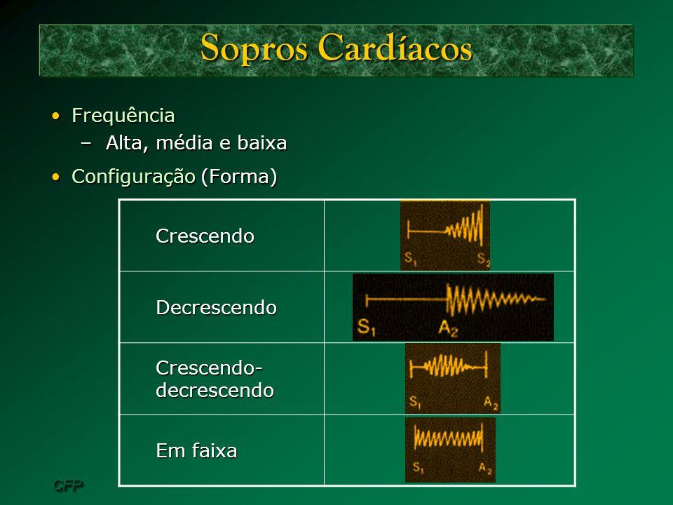 Sopros Cardíacos Crescendo Frequência Alta, média e baixa Decrescendo