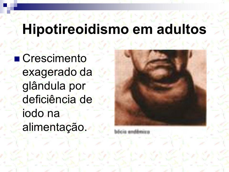 Hipotireoidismo em adultos