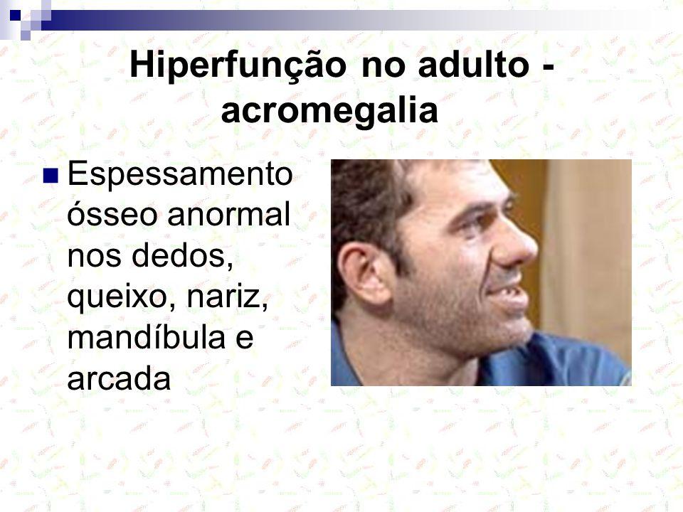 Hiperfunção no adulto - acromegalia