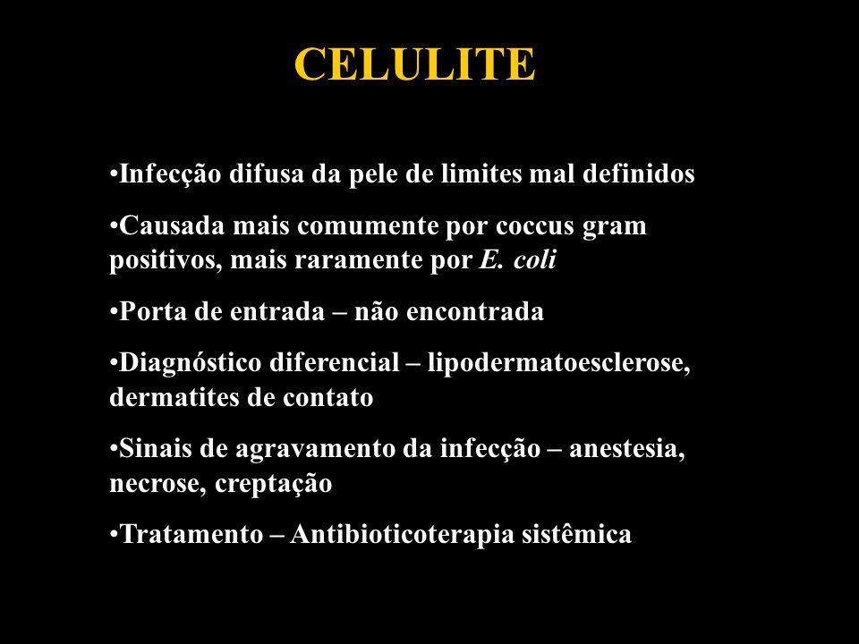 CELULITE Infecção difusa da pele de limites mal definidos