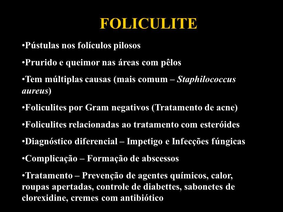 FOLICULITE Pústulas nos folículos pilosos