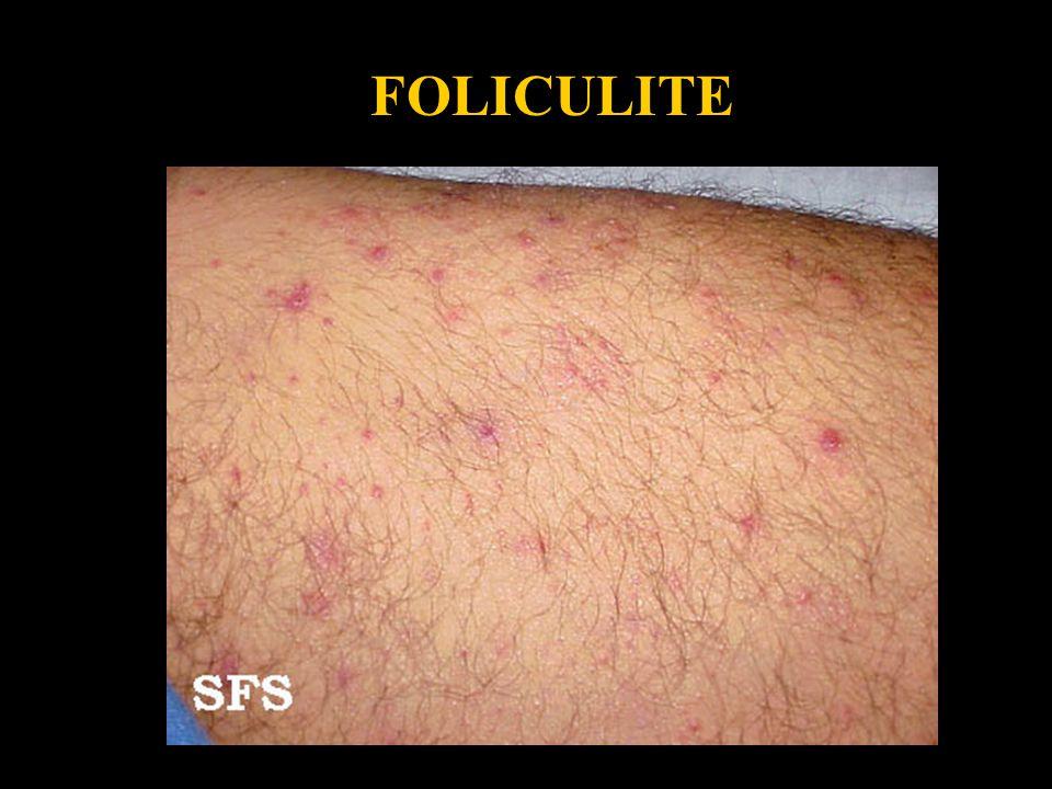 Folliculitis4 FOLICULITE.