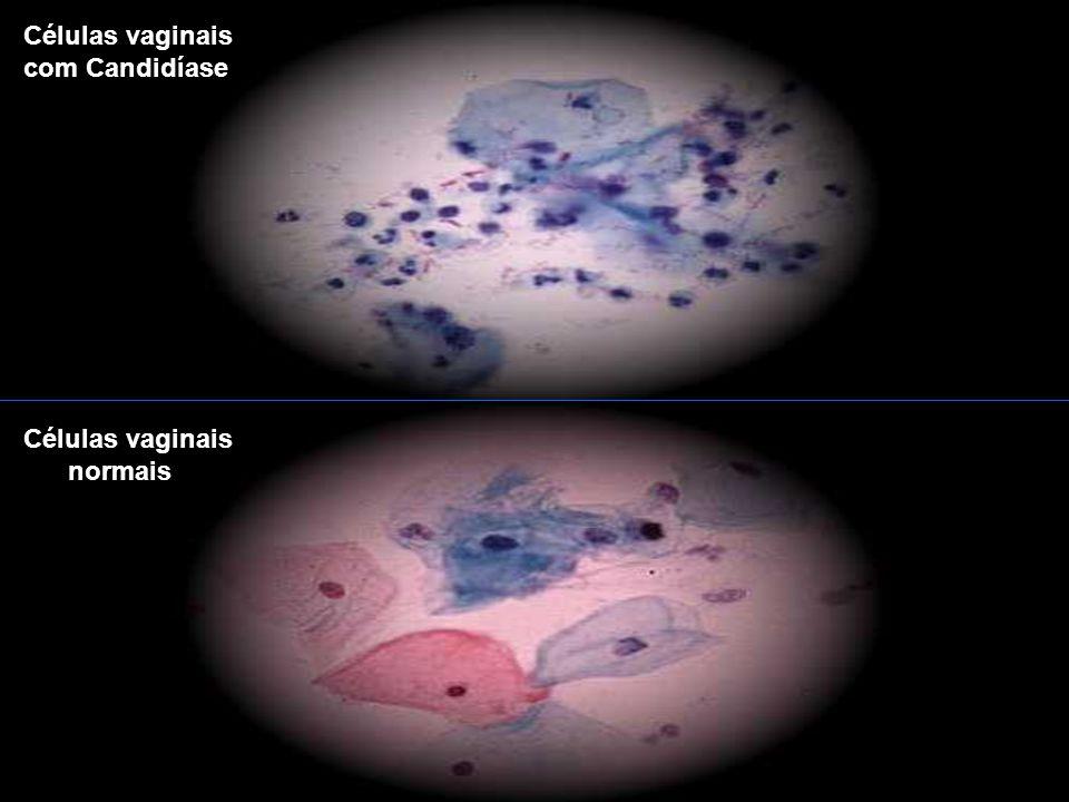 Células vaginais com Candidíase Células vaginais normais