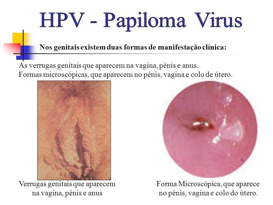 HPV - Papiloma Virus Nos genitais existem duas formas de manifestação clínica: As verrugas genitais que aparecem na vagina, pênis e anus.