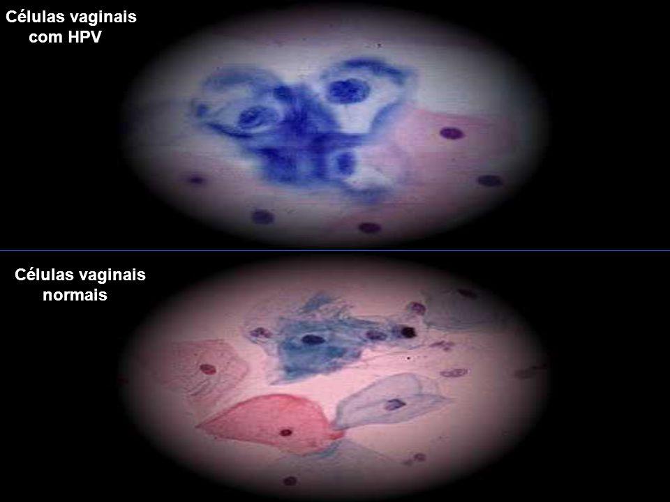 Células vaginais com HPV Células vaginais normais