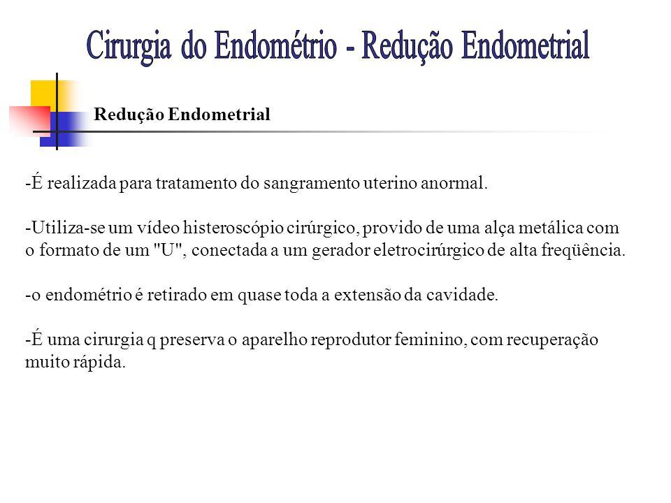 Cirurgia do Endométrio - Redução Endometrial