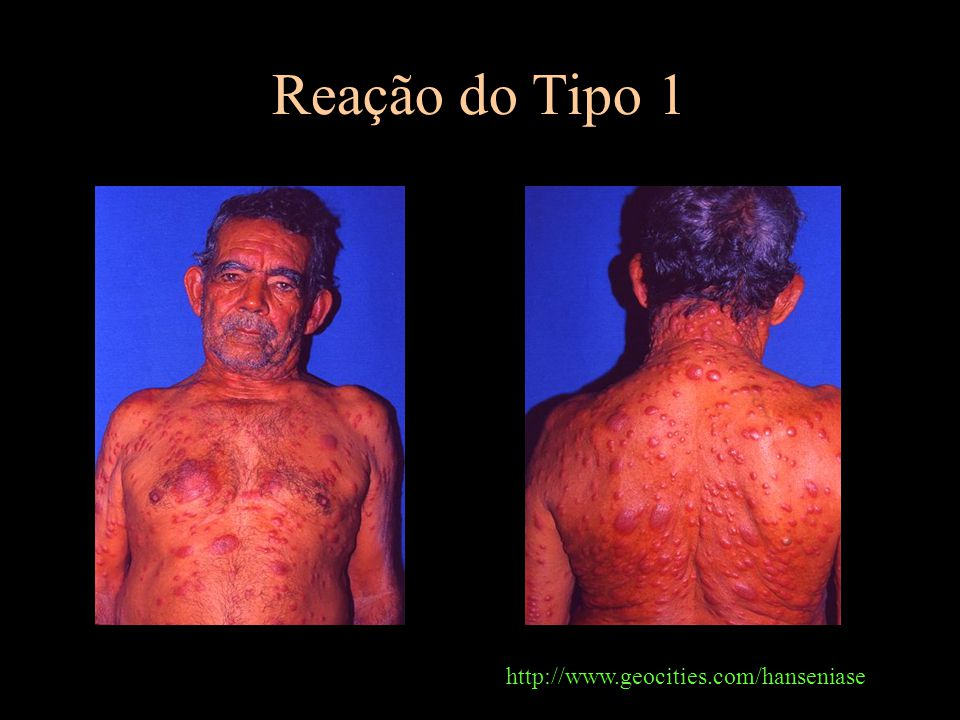 Reação do Tipo 1 http://www.geocities.com/hanseniase