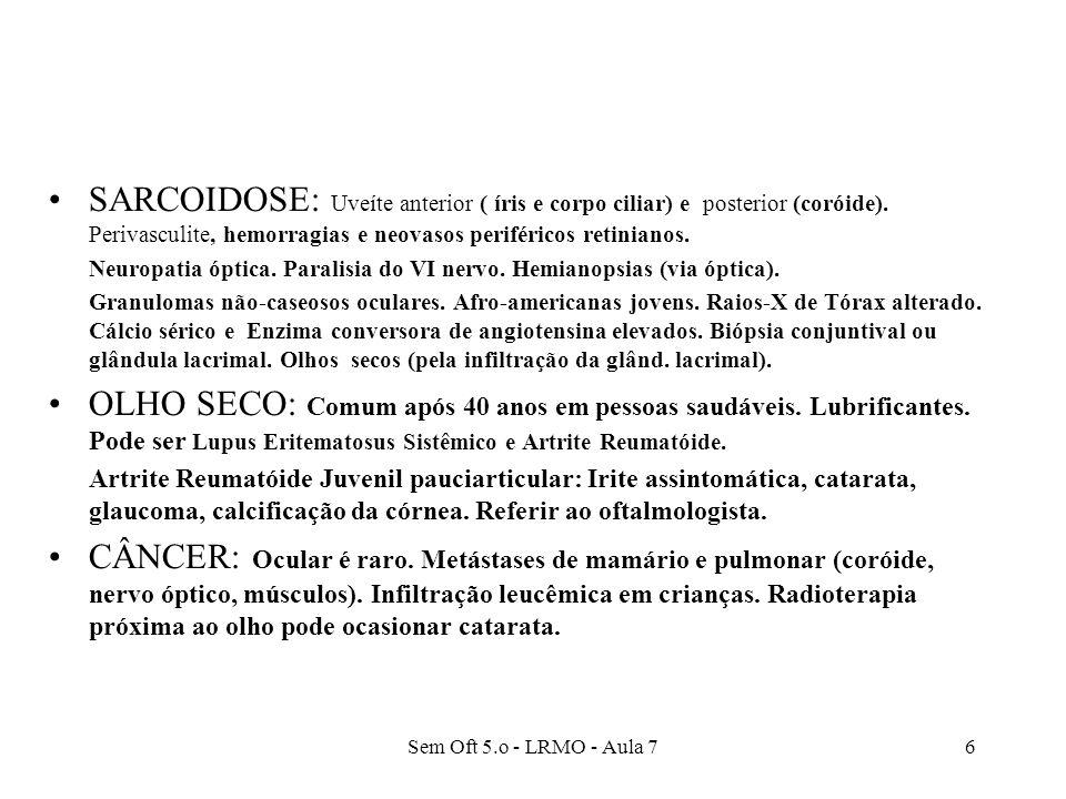 SARCOIDOSE: Uveíte anterior ( íris e corpo ciliar) e posterior (coróide). Perivasculite, hemorragias e neovasos periféricos retinianos.
