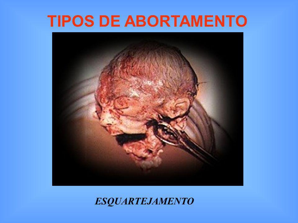 TIPOS DE ABORTAMENTO ESQUARTEJAMENTO