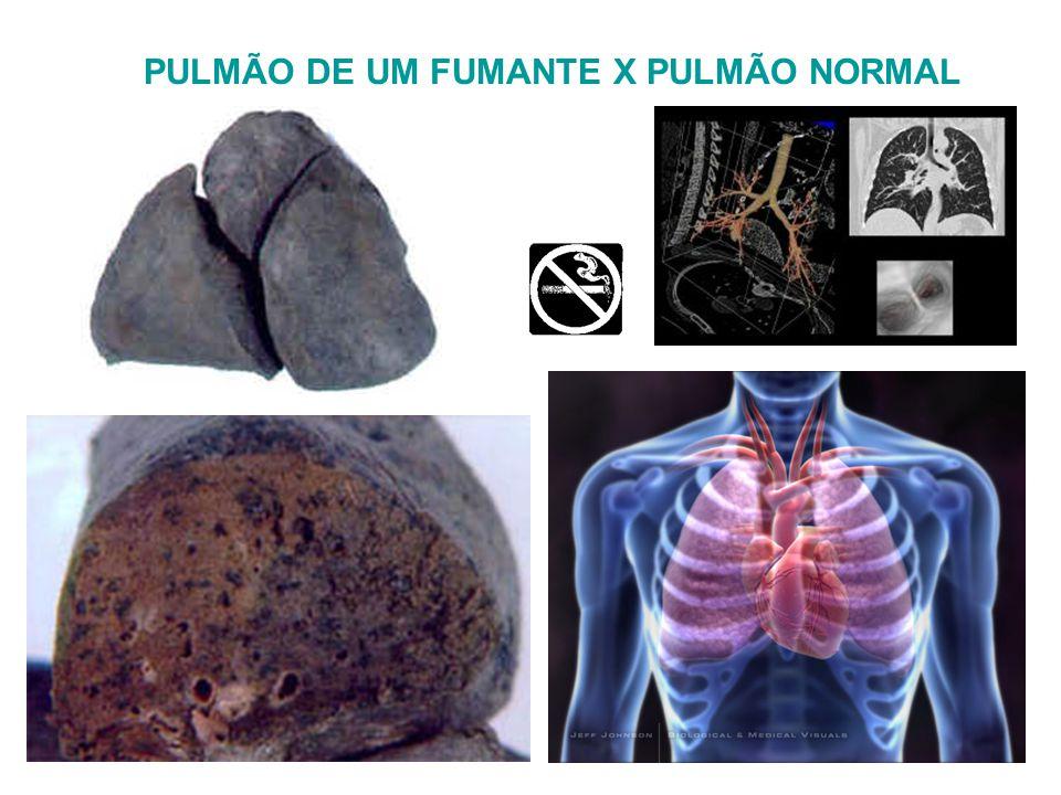 PULMÃO DE UM FUMANTE X PULMÃO NORMAL