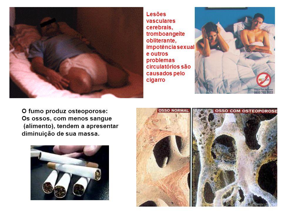 O fumo produz osteoporose: Os ossos, com menos sangue