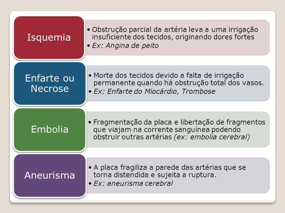 Isquemia Enfarte ou Necrose Embolia Aneurisma