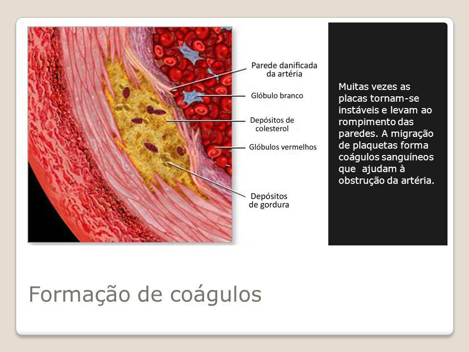 Muitas vezes as placas tornam-se instáveis e levam ao rompimento das paredes. A migração de plaquetas forma coágulos sanguíneos que ajudam à obstrução da artéria.