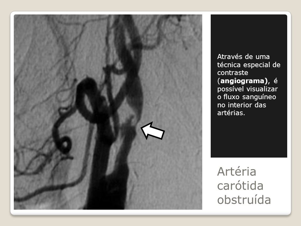 Artéria carótida obstruída