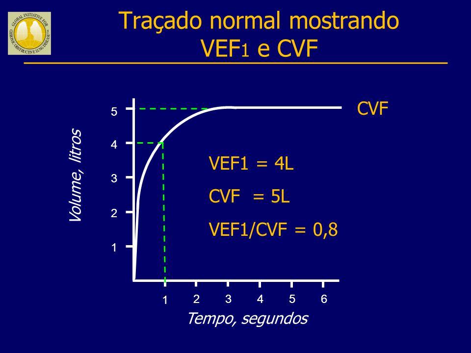 Traçado normal mostrando VEF1 e CVF