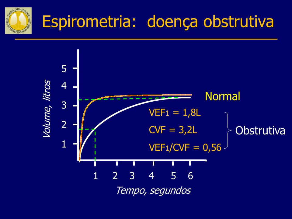 Espirometria: doença obstrutiva