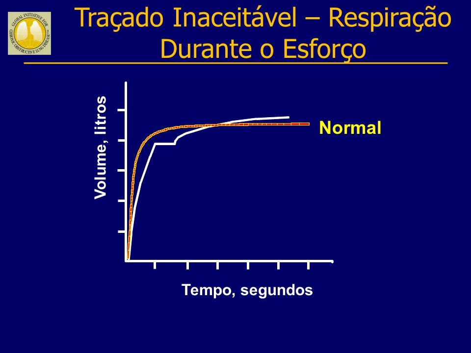 Traçado Inaceitável – Respiração Durante o Esforço