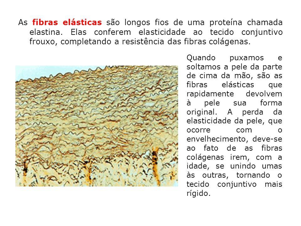 As fibras elásticas são longos fios de uma proteína chamada elastina