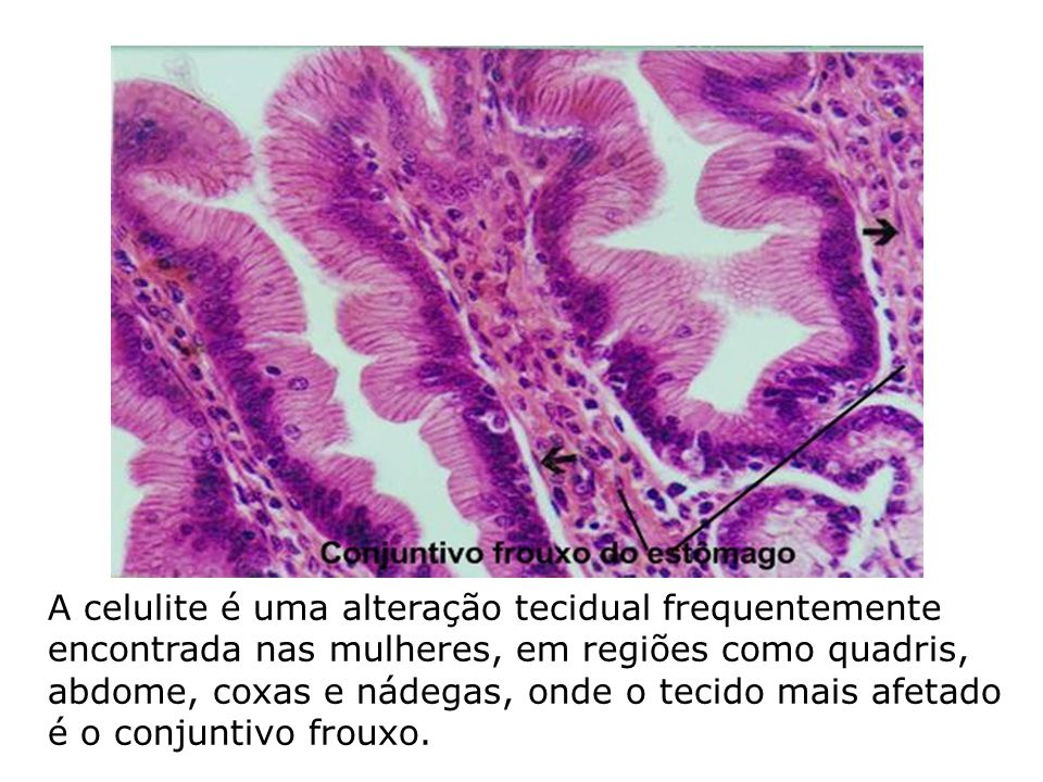 A celulite é uma alteração tecidual frequentemente encontrada nas mulheres, em regiões como quadris, abdome, coxas e nádegas, onde o tecido mais afetado é o conjuntivo frouxo.