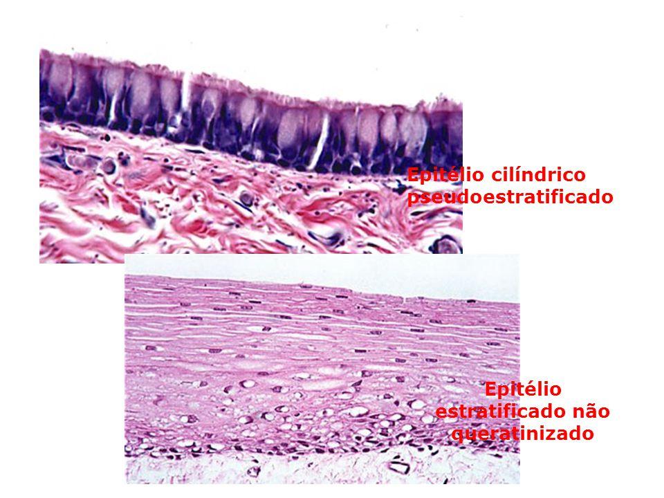 Epitélio estratificado não queratinizado