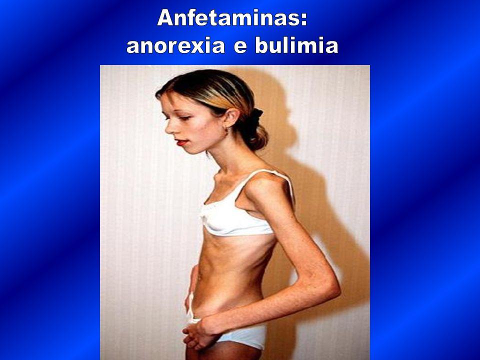 Anfetaminas: anorexia e bulimia