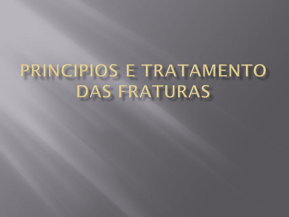 PRINCIPIOS E TRATAMENTO DAS FRATURAS