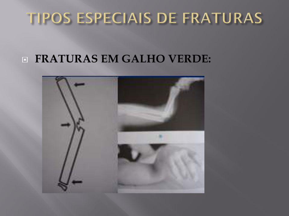 TIPOS ESPECIAIS DE FRATURAS