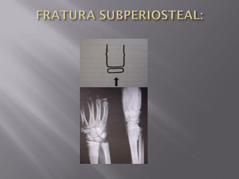 FRATURA SUBPERIOSTEAL: